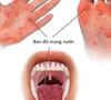 Tay chân miệng: phòng bệnh hơn chữa bệnh