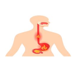 Dấu hiệu cho thấy bạn bị trào ngược dạ dày thực quản