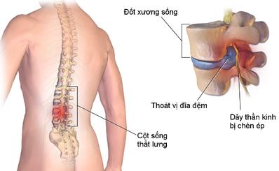 Các bài tập giảm đau lưng