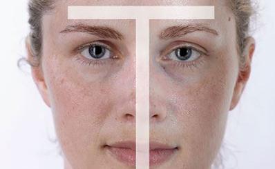 Cách nhận biết và chăm sóc các loại da