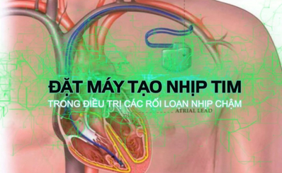 Đặt máy tạo nhịp tim trong điều trị rối loạn nhịp tim chậm