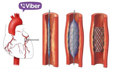 Hội chẩn nhanh qua Viber kịp thời cứu sống bệnh nhân bị nhồi máu cơ tim