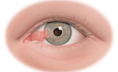 Chăm sóc mắt khi bị mộng thịt
