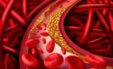 Vì sao người gầy vẫn bị nhiễm mỡ máu?