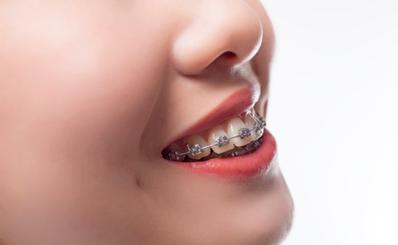Độ tuổi nào thích hợp để niềng răng?